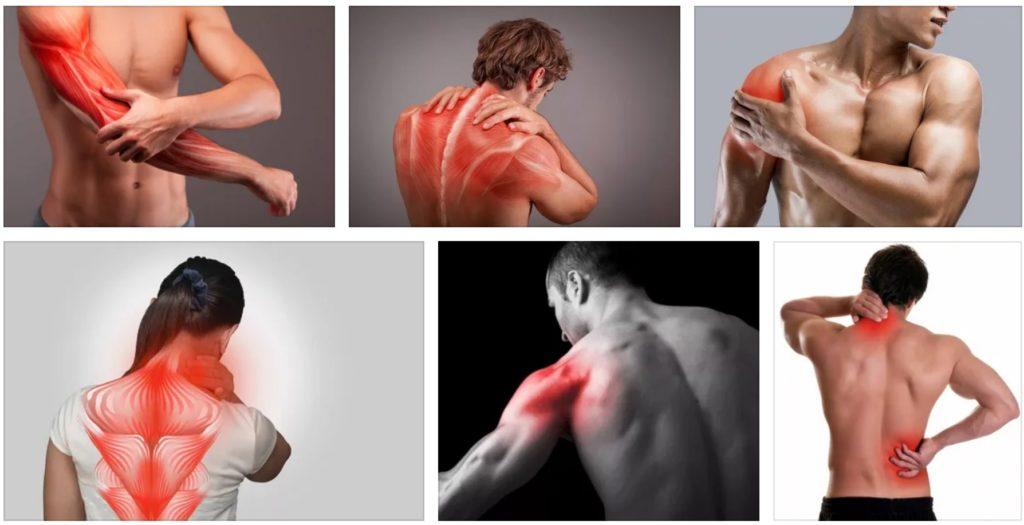 боли в мышцах тела